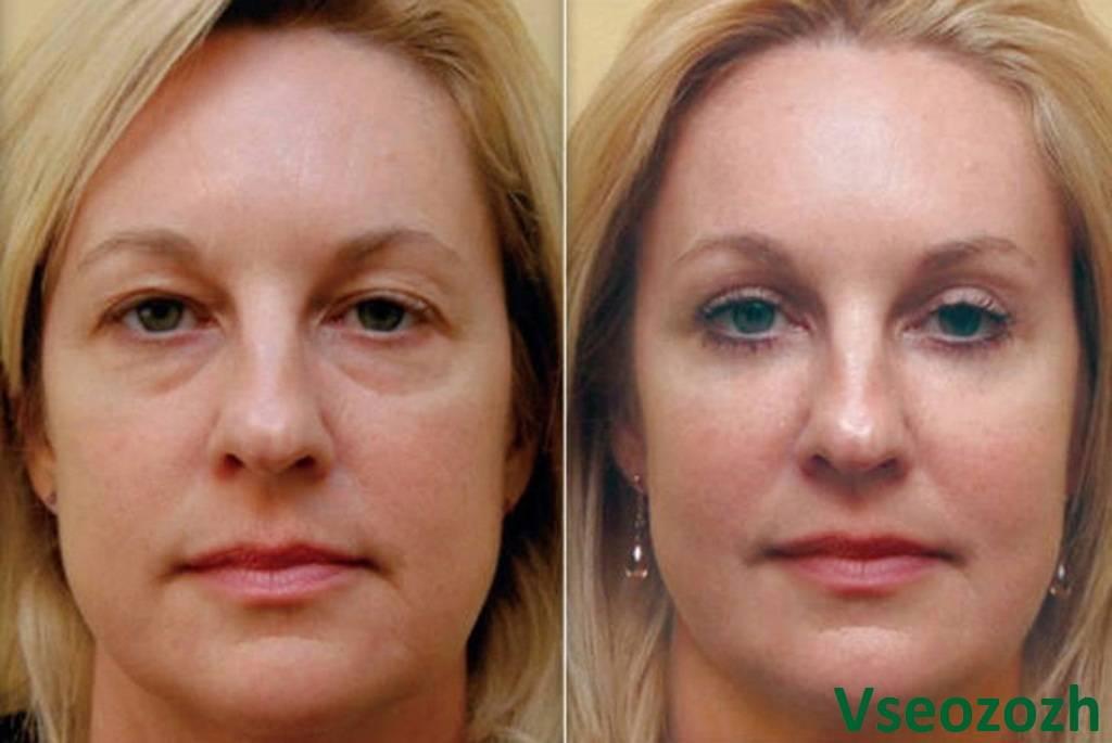 Коррекция носослёзной борозды — методы, фото до и после