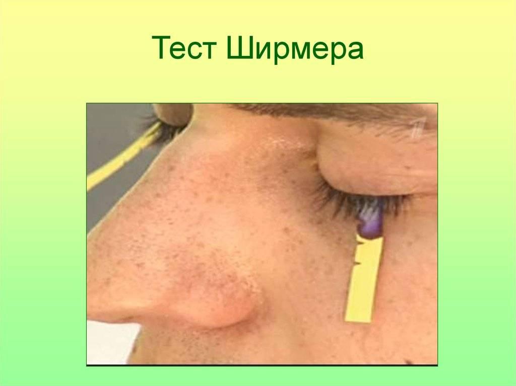 """Тест (проба) ширмера: техника проведения - """"здоровое око"""""""