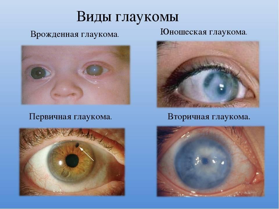 Врожденная глаукома: причины, признаки и лечение
