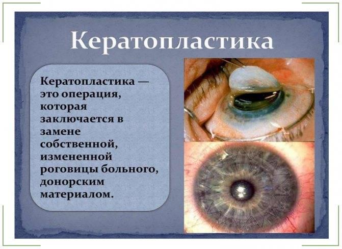 Восстановление зрения путём операции: суть кератотомии