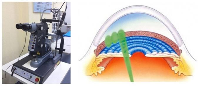 Глаукома: лечение лазером, стоимость, отзывы