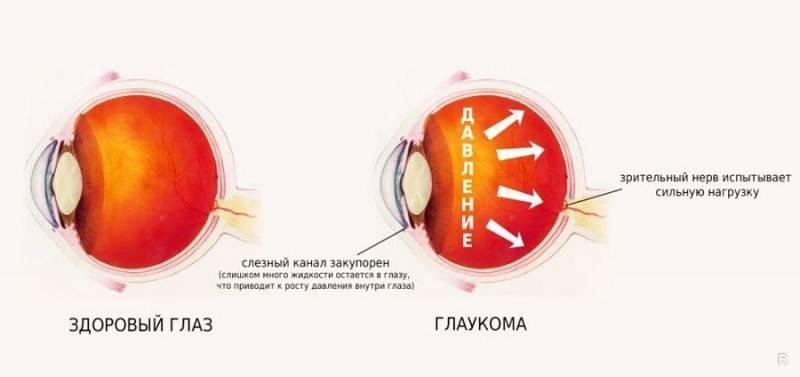 Признаки глаукомы глаза - симптомы и признаки глаукомы в ранней стадии у взрослых | медицинский портал spacehealth