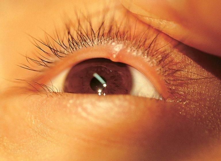 На слизистой глаза появился прозрачный пузырек: что это такое oculistic.ru