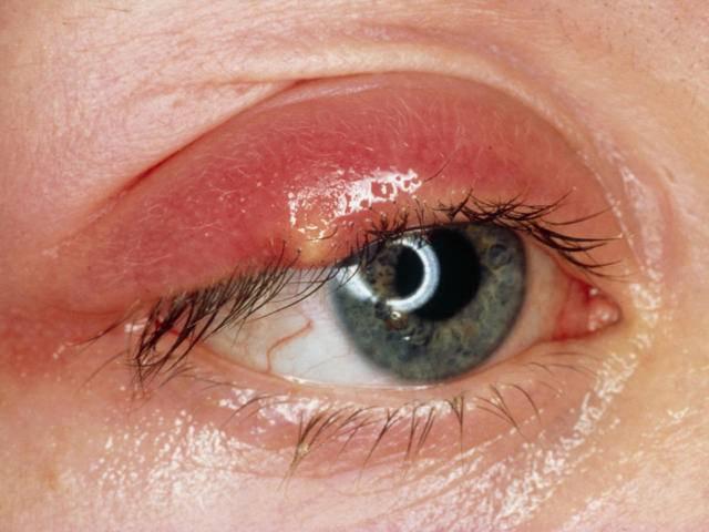 Ячмень на глазу застывший - все про болезни