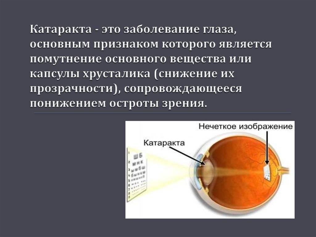 Катаракта. симптомы, причины, факторы риска, эффективное лечение и профилактика болезни.