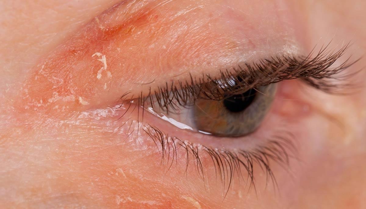 Блефарит чешуйчатый: симптомы и лечение заболевания