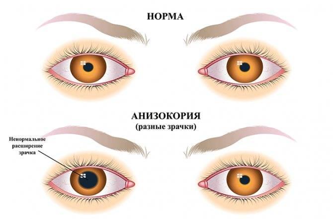 """Один зрачок больше другого: причины, симптомы - """"здоровое око"""""""
