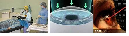 Лазерная коррекция дальнозоркости: после 50 лет, отзывы при лечении зрения лазером