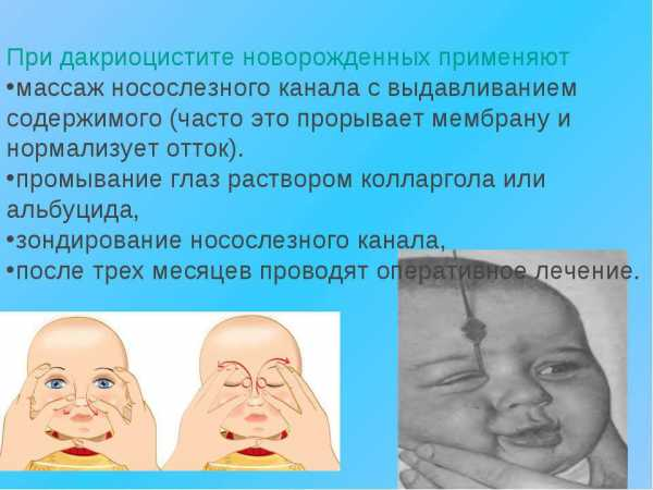 Массаж слезного канала у новорожденных при непроходимости, видео