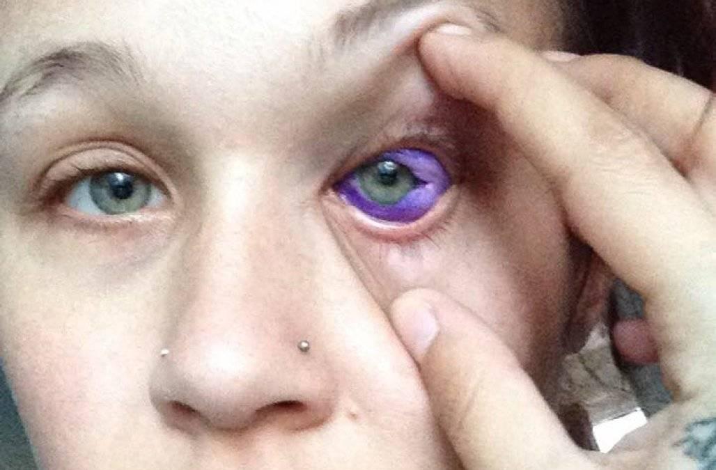 Динамика роста и развития глаза человека