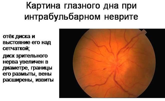 Неврит зрительного нерва: причины, симптомы, диагностика и лечение