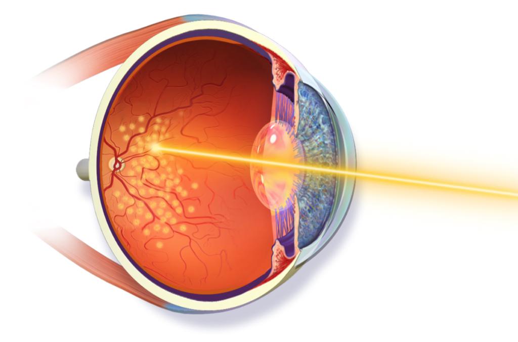 Отслоение сетчатки глаза: операция и сколько она стоит, отзывы