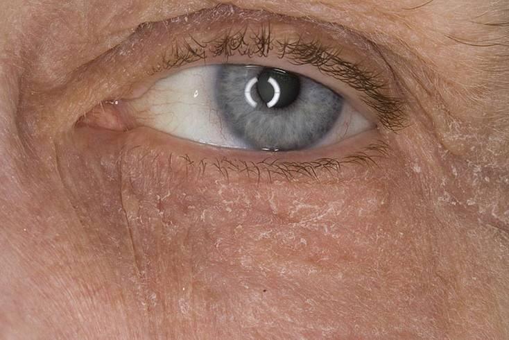 Сухость под глазами. очень сухая кожа под глазами что делать