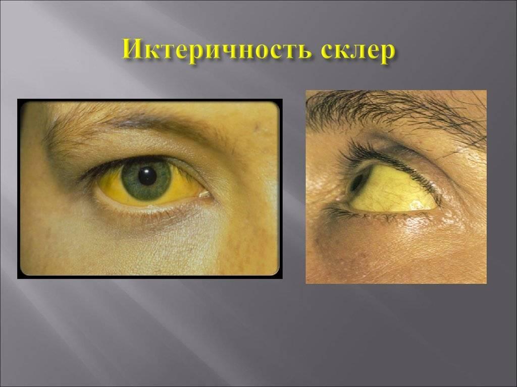 Заболевания роговицы. кератиты.