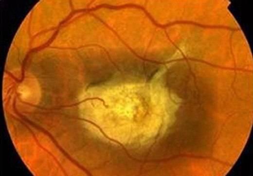 Тапеторетинальная абиотрофия (пигментная дистрофия) сетчатки - симптомы и лечение