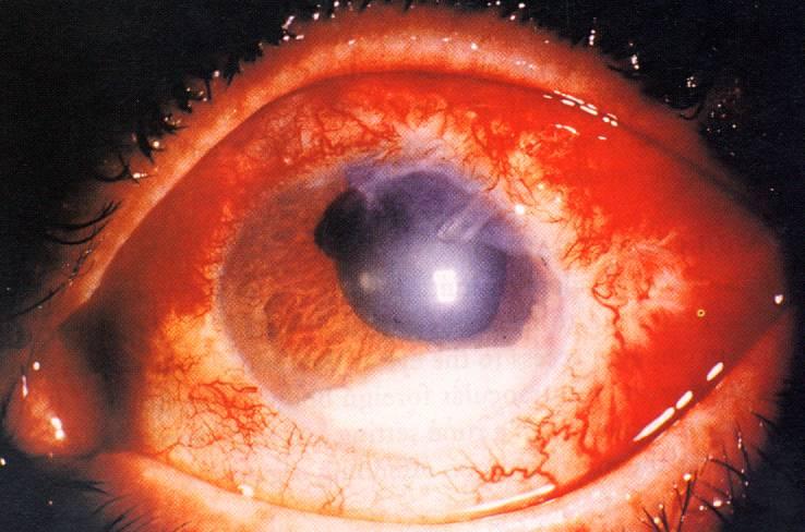 Эндофтальмит глаза: симптомы и лечение