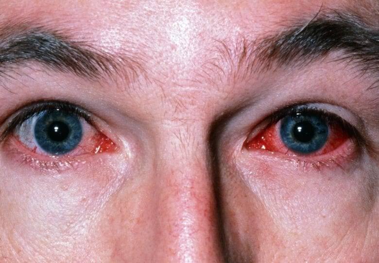 Что делать, если от компьютера устают и краснеют глаза?