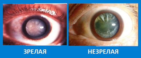 Зрелая катаракта: нужна ли операция при незрелой, код по мкб-10, лечение недоразвитой, перезрелой и запущенной стадий