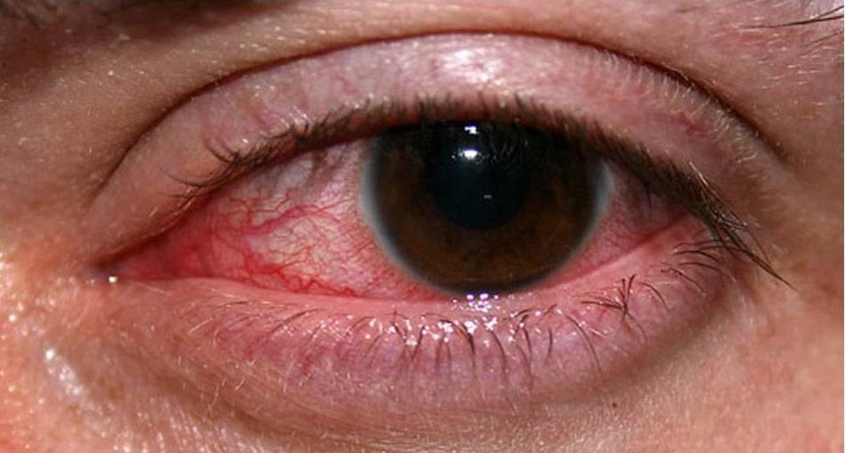 Герпетический кератит: причины, симптомы, лечение