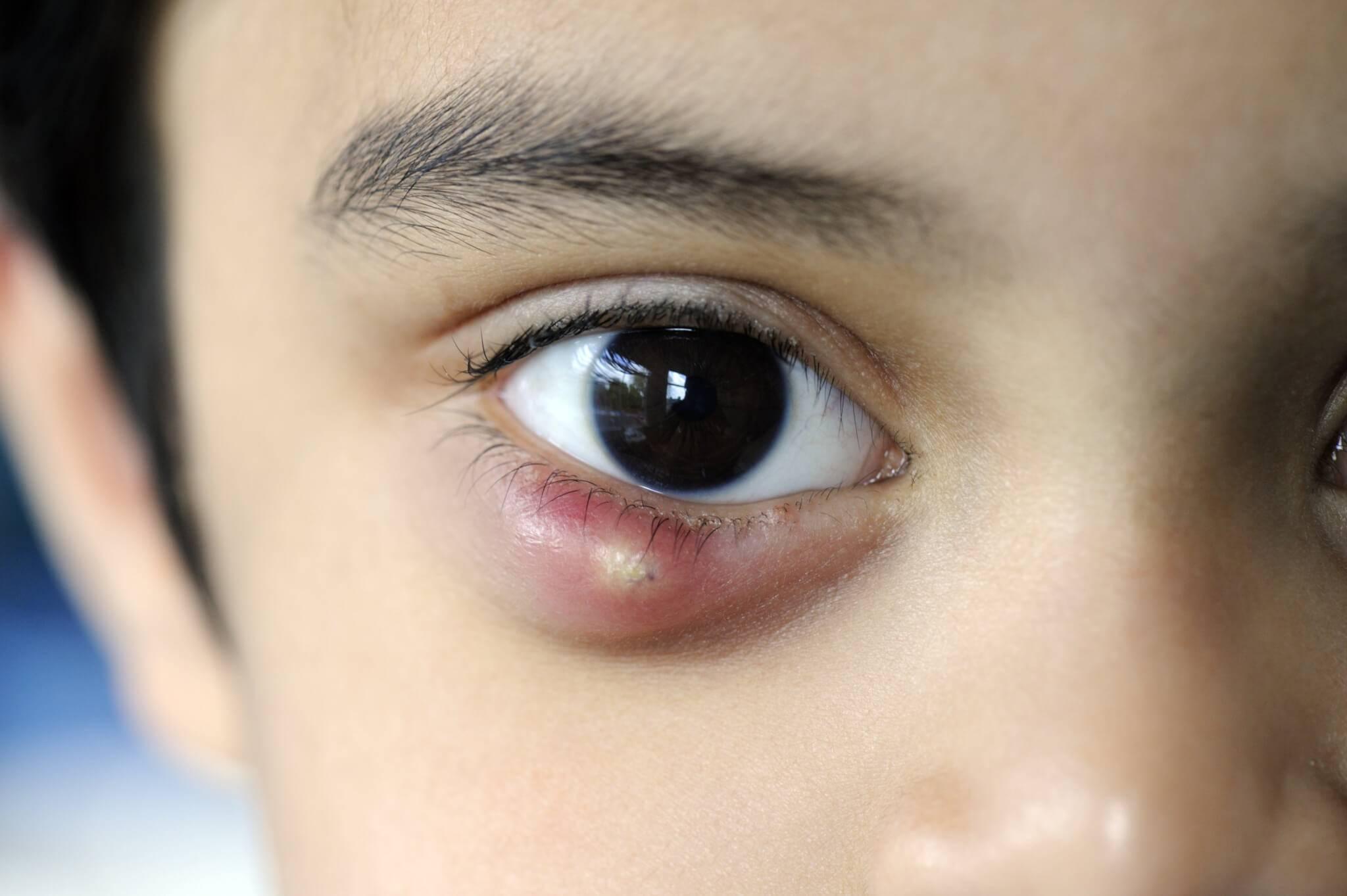 Внутренний ячмень на глазу: лечение, причины, симптомы (фото), как выглядит мейбомит, осложнения