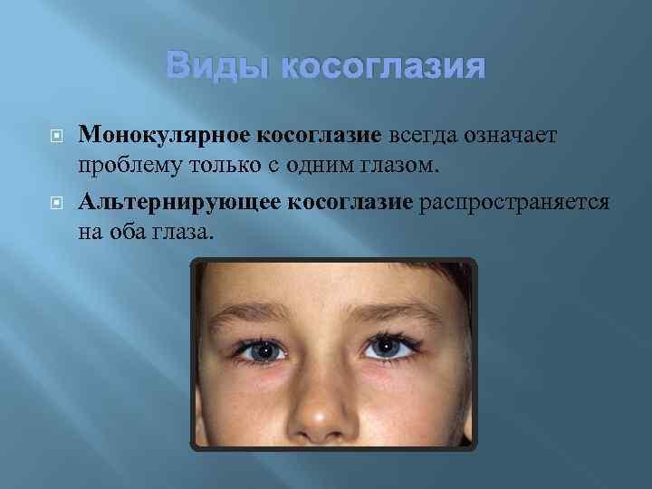 Сходящееся содружественное косоглазие: диагностика и особенности лечения — глаза эксперт