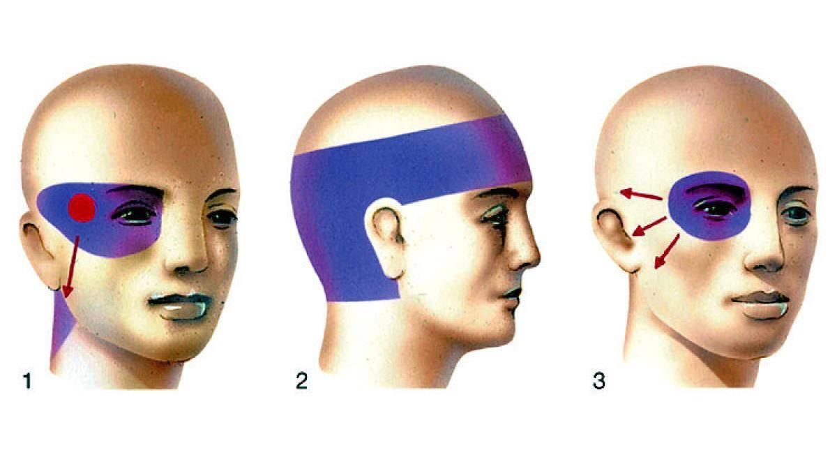 Болит правая часть головы и слезится правый глаз