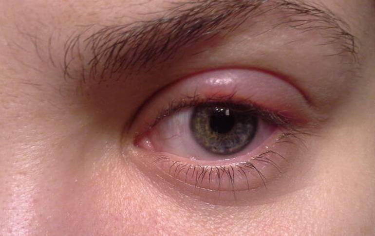 Почему появляются трещины и шелушение кожи вокруг глаз