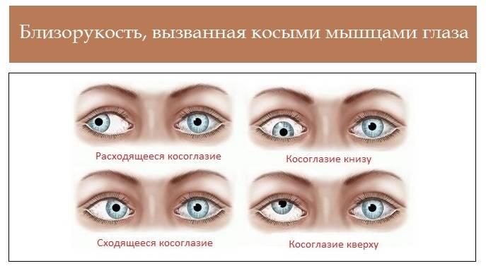 Психосоматика зрения: близорукость, дальнозоркость, астигматизм. - мир женщины - медиаплатформа миртесен
