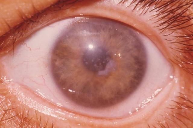 Кератопатия глаза — что это и как лечить