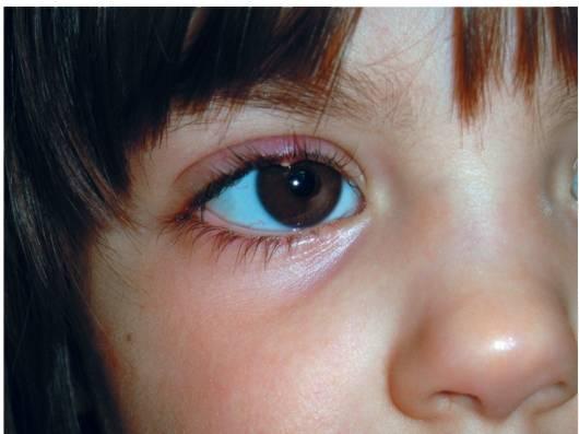 """Ячмень на глазу у ребёнка: причины и лечение - """"здоровое око"""""""