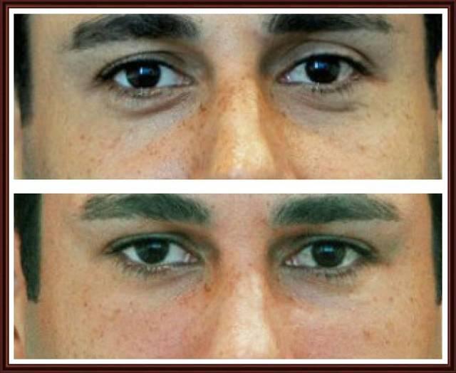 Синяки под глазами: причины и лечение у мужчин, как избавится от мешков в домашних условиях
