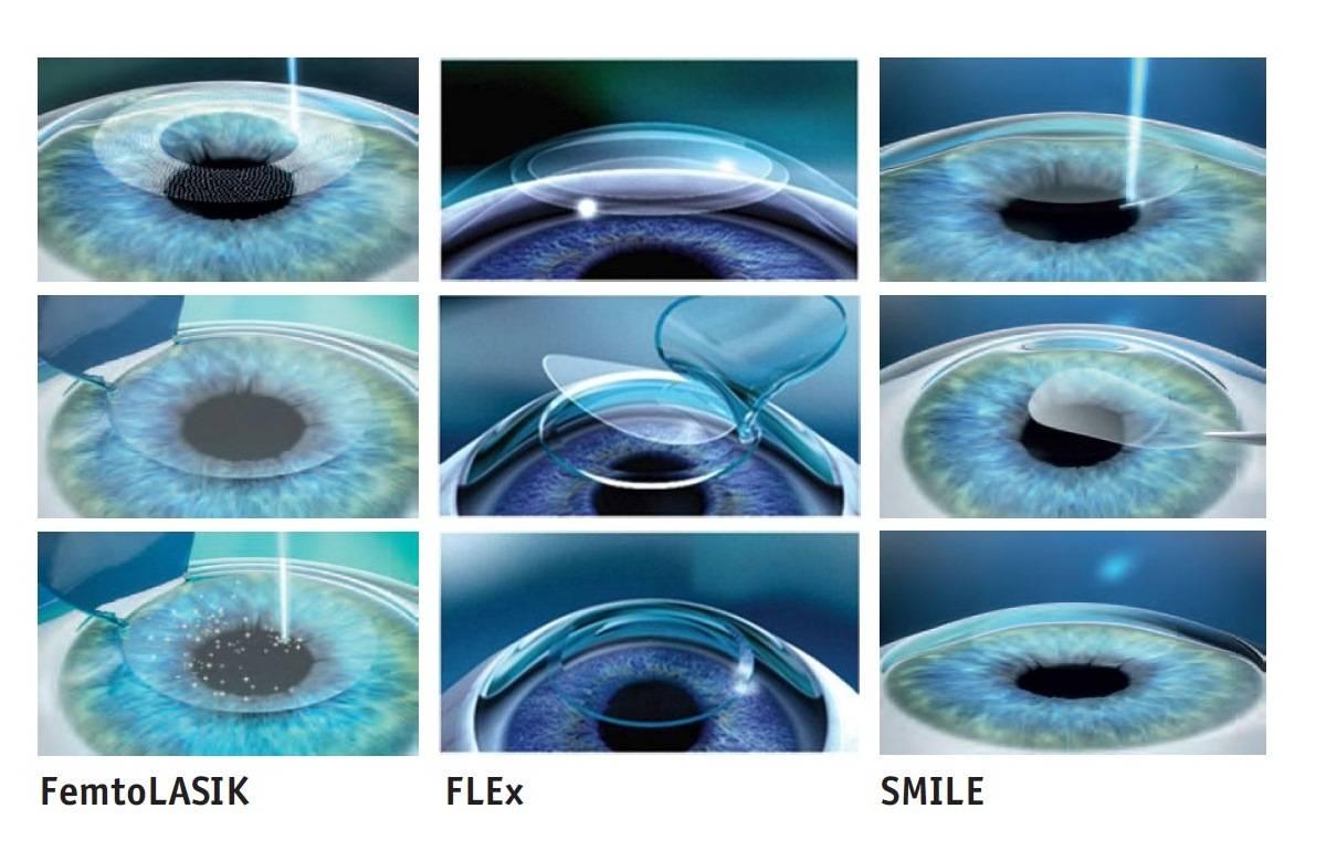 Восстановление зрения с помощью операции lasik