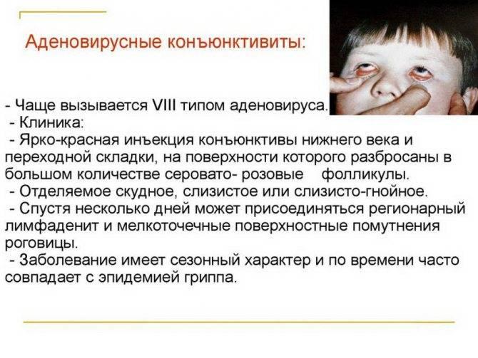 Кашель температура светобоязнь у ребенка