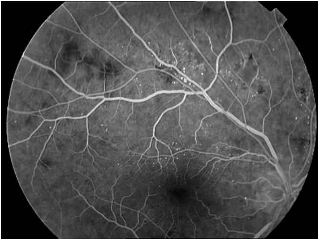 Что такое флуоресцентная ангиография сетчатки глаза: что показывает, расшифровка