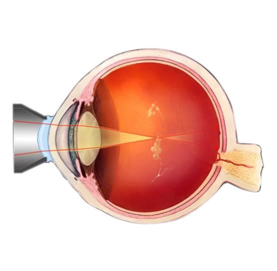 Витреолизис или удаление мушек в глазах лазером: стоимость, отзывы людей и особенности операции | malyshlandia.ru