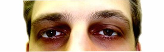 Синяки под глазами: причины появления у мужчин и женщин, методы борьбы с потемнениями