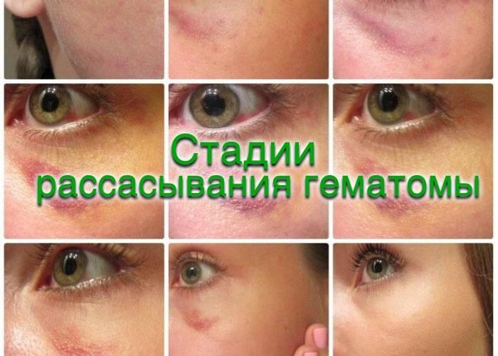 Стадии синяка под глазом по цвету – лечение артроза и артрита, лечение подагры