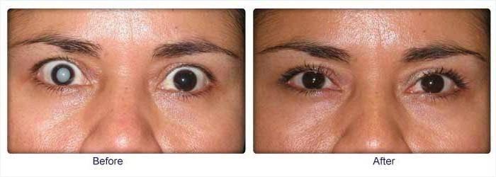 После операции катаракты: глаз не видит, двоится, отек роговицы, осложнения при удалении и замене хрусталика, причина близорукости