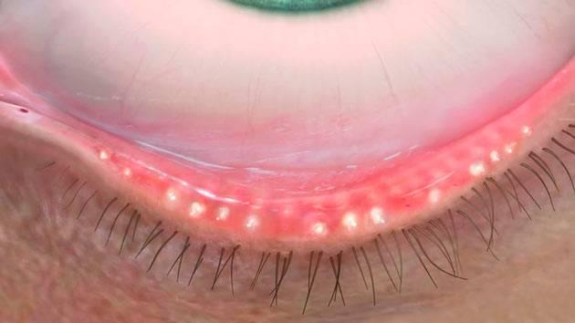 Блефарит – что это такое? лечение, симптомы и фото глаза