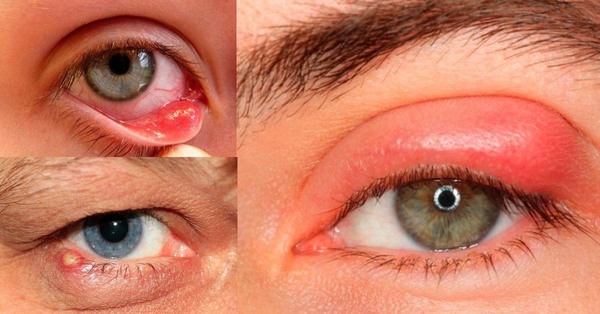 Основные симптомы холодного или застывшего ячменя. последствия ячменя на глазу