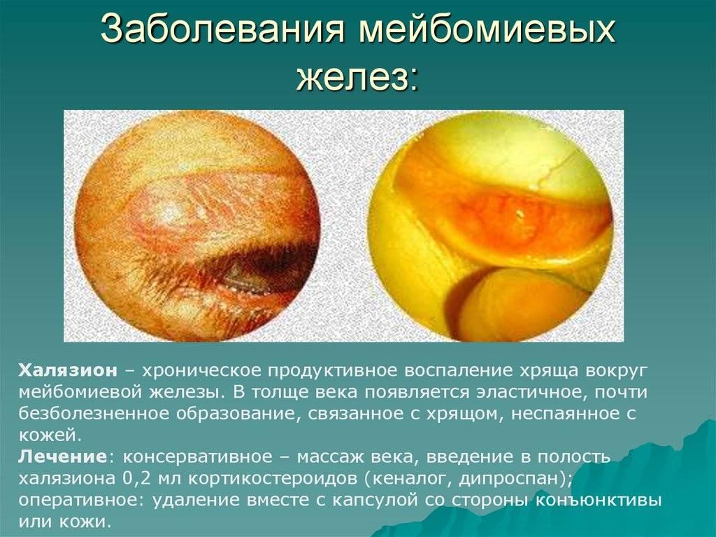 Мейбомит глаза или дисфункция мейбомиевых желез: причины, симптомы, лечение