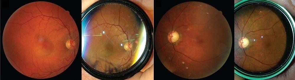 Как проверяется глазное дно и что показывает его исследование