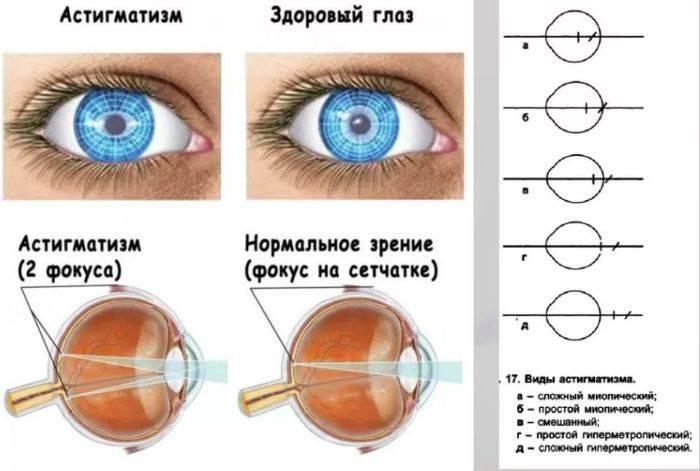 Сложный миопический астигматизм обоих глаз: причины появления, виды и лечение