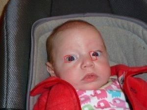 Косоглазие у новорожденных - когда проходит? ответ здесь!