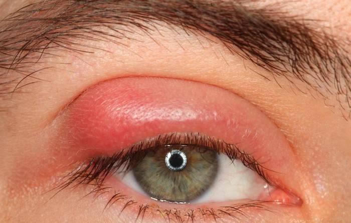 Быстрое лечение ячменя на глазу дома, убираем ячмень в домашних условиях