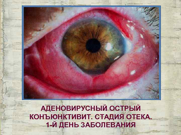 Вирусный конъюнктивит: характеристика, симптомы, лечение