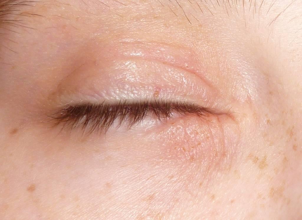 Какие народные средства подходят коже вокруг глаз?