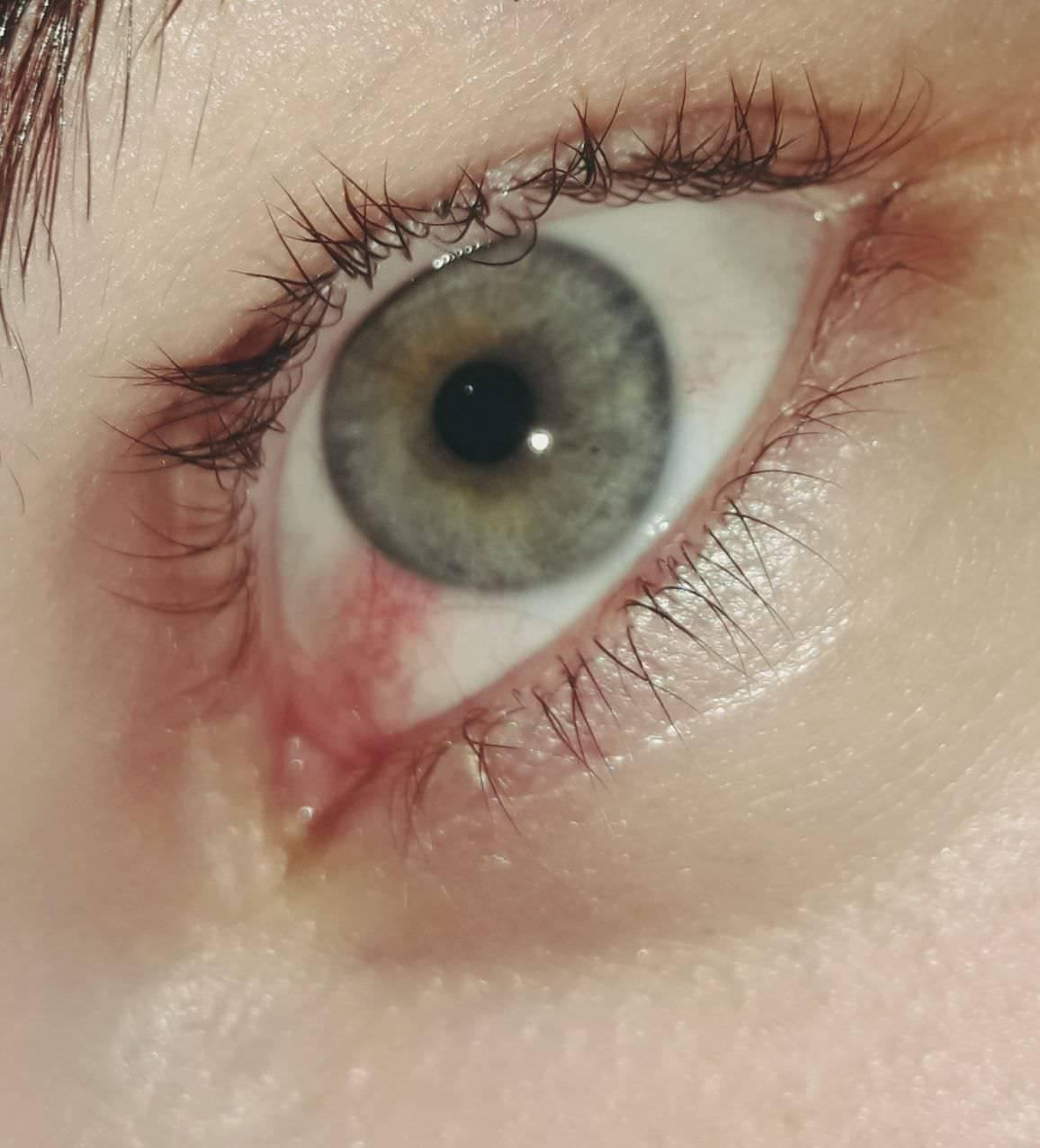 Слезятся глаза от компьютера лечение