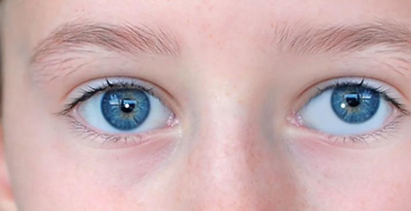 """Почему один глаз больше другого: причины, симптомы и лечение - """"здоровое око"""""""