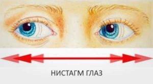 Нистагм горизонтальный: причины возникновения и возможное лечение — глаза эксперт